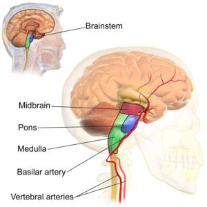 brainstem and headache